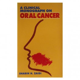 A Clinical Monograph on Oral Cancer